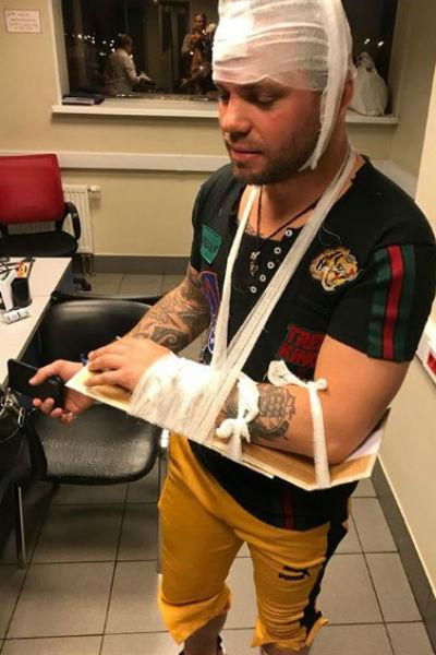 Артист получил травмы головы и рук