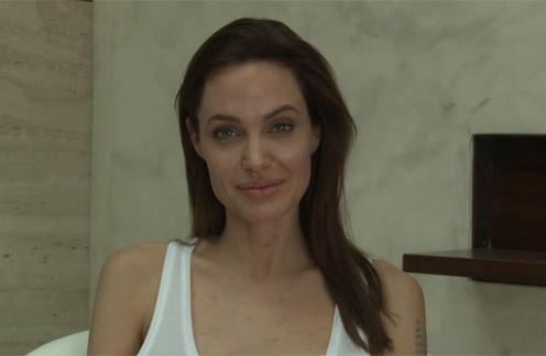 Анджелина Джоли, болеющая ветрянкой