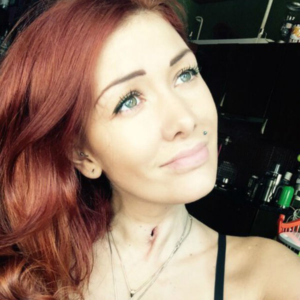 Николь шокировала телезрителей шрамом на шее и установленной трахеостомической трубкой, через которую она дышит