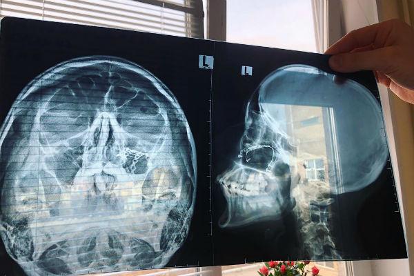 После избиения Наталье пришлось делать срочную операцию