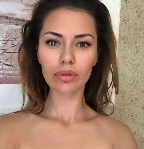 Виктория Боня поставила брекеты