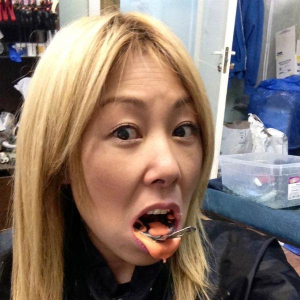 Анита у специалистов, которые слепили для нее верхнюю челюсть.