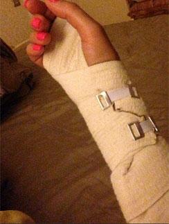 К сожалению, порой ей не удается избежать травм