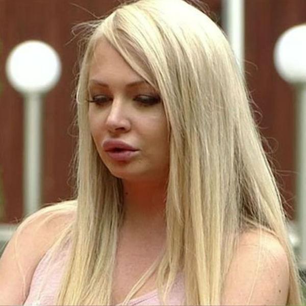 Так Дарья выглядела после процедуры