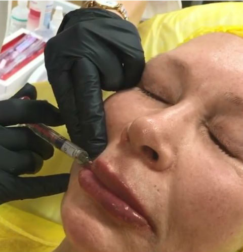 Косметолог провел артистке контурную пластику губ