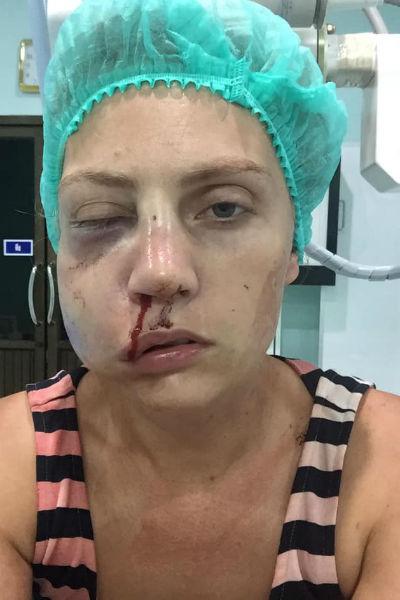 Екатерине придется провести в больнице несколько недель