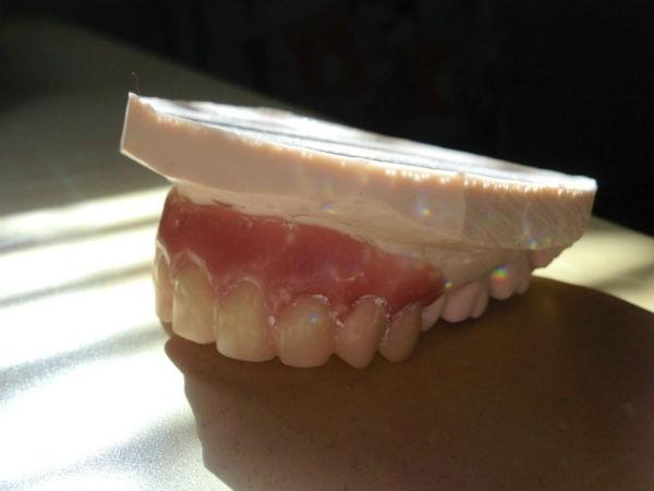 А вот и новые зубки!