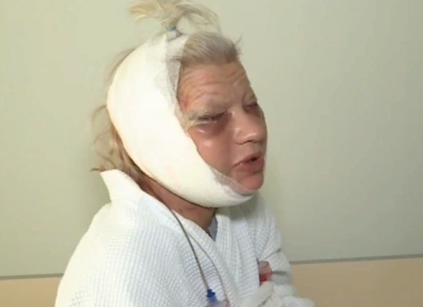 Так Терешкович выглядела после подтяжки лица и блефаропластики