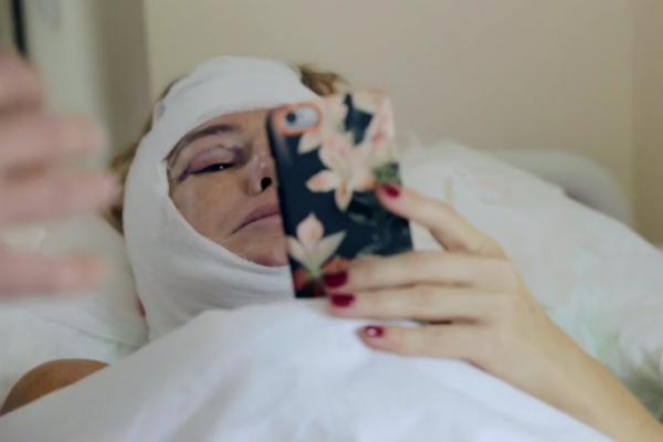 Первые дни после операции стали для актрисы настоящей пыткой