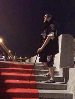 Филипп Киркоров получил травму на «Славянском базаре»