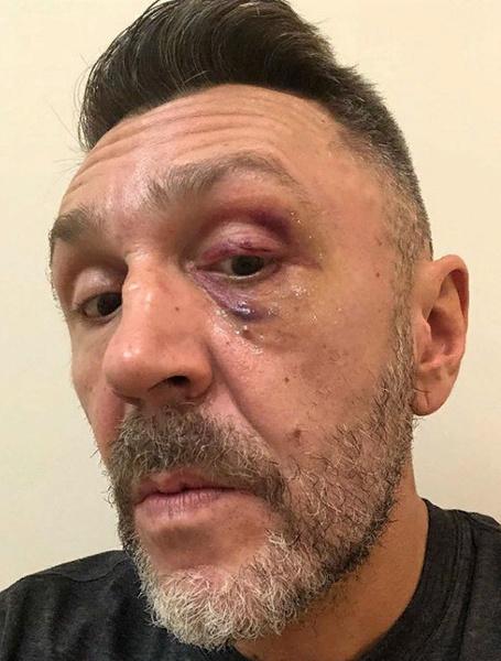 Шнуров показал подбитый глаз