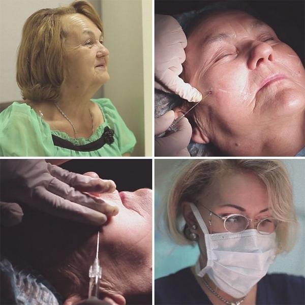 Ольга Гобозова поделилась деталями процедуры