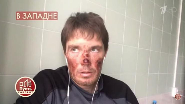 Экскурсовод сам получил серьезные травмы