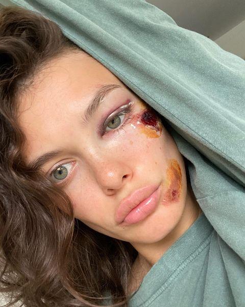 Лиза Адаменко покалечила лицо