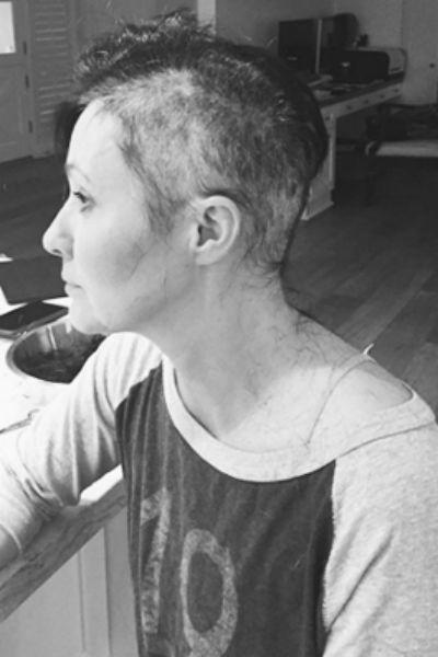 Из-за болезни актриса лишилась волос