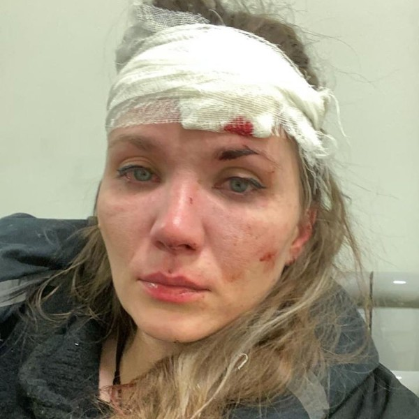 Анастасия Веденская зашила раны, полученные в результате инцидента