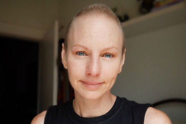 Наташа Стюарт перенесла 20 недель химиотерапии