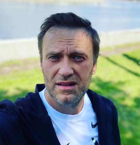 У Алексея Навального начался отек мозга