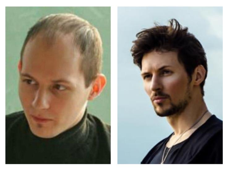 Эксперты полагали, что прическа Дурова — следствие удачной пересадки волос или мастерства стилистов