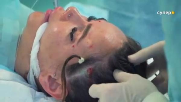 Айза Анохина на операционном столе — фото