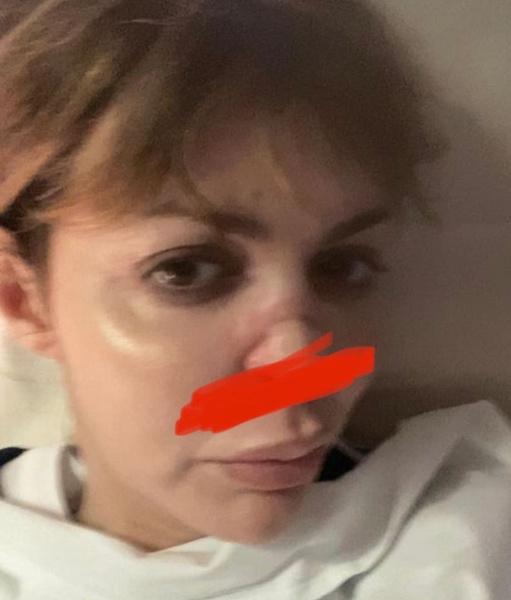 Алиса Аршавина опубликовала кадры изуродованного лица