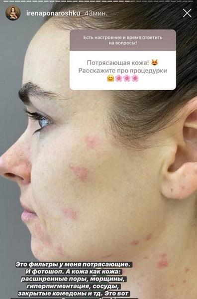 Красные пятна и отеки: как выглядит Ирена Понарошку без макияжа