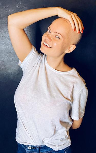 На днях Вика решила побриться налысо, так как волосы из-за лучевой терапии стали выпадать