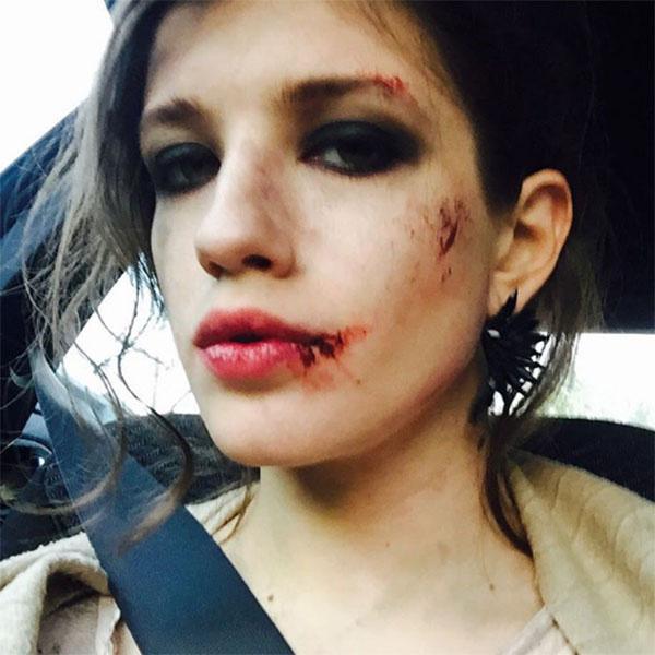 «Напали в подворотне?», «Муж бьет?», «Коты?», - начали гадать фанаты Анны Чиповской, увидев это фото певицы