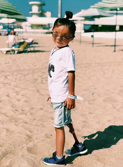 Рустам носит протез на ноге