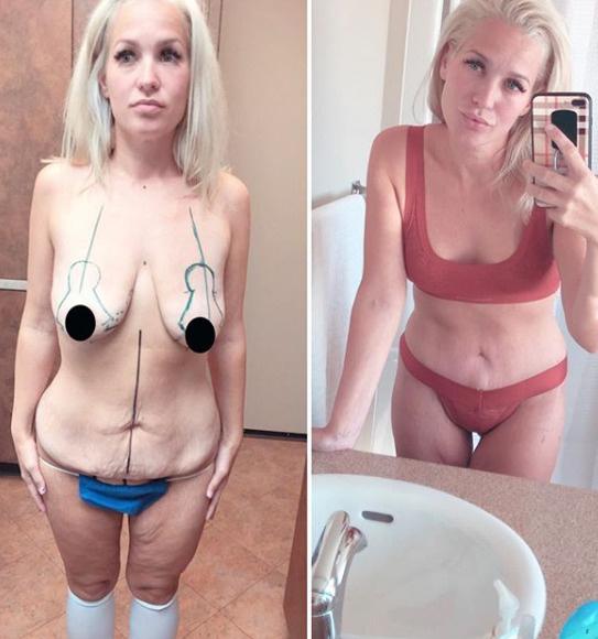 Женщине пришлось отрезать лишнюю кожу после столь стремительного похудения