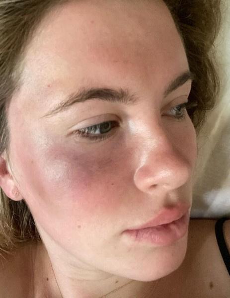 Наркоманка избила и ограбила дочь Алека Болдуина