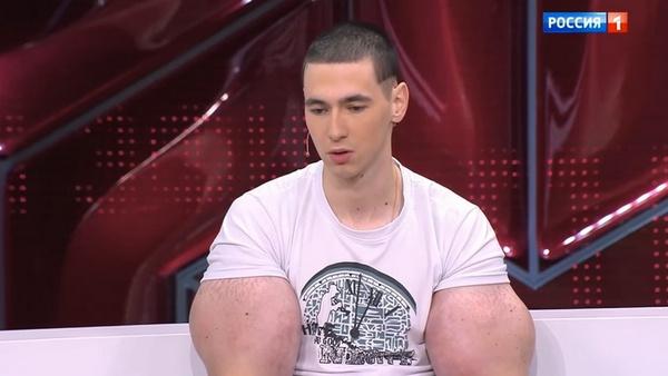 Кирилл отрицает, что ему могут ампутировать руки