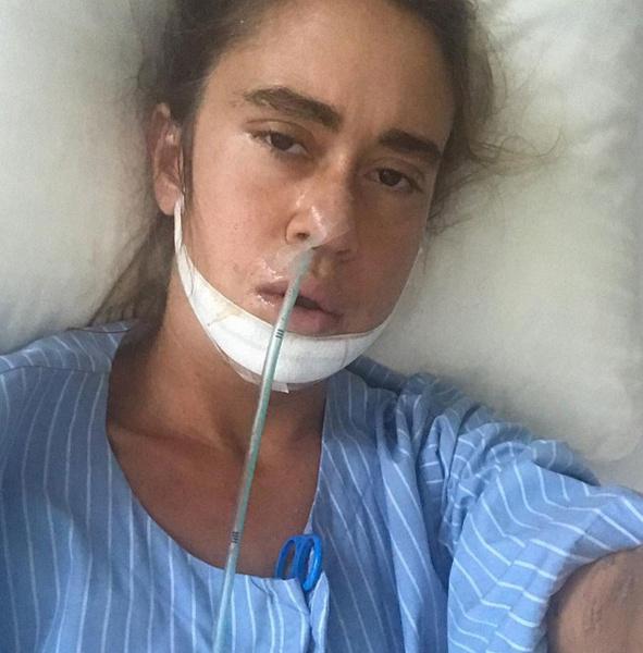 Несколько лет назад Плаксина получила серьезную травму челюсти.
