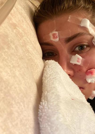 Лизе диагностировали неврит лицевого нерва