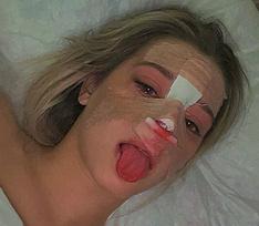 «Очень больно!» Девушка Дани Милохина, тиктокерша Юля Гаврилина сделала ринопластику – фото