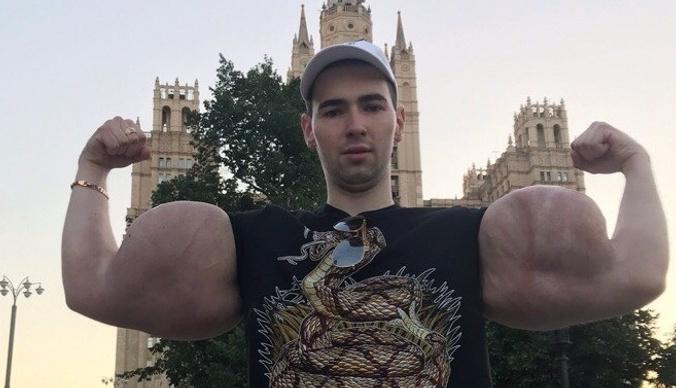 Кирилл «Руки-базуки» перенес операцию