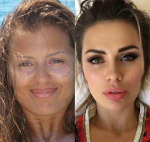 Стиль: Боня подтянула лицо, а Романец несколько раз переделывала нос – фото №3