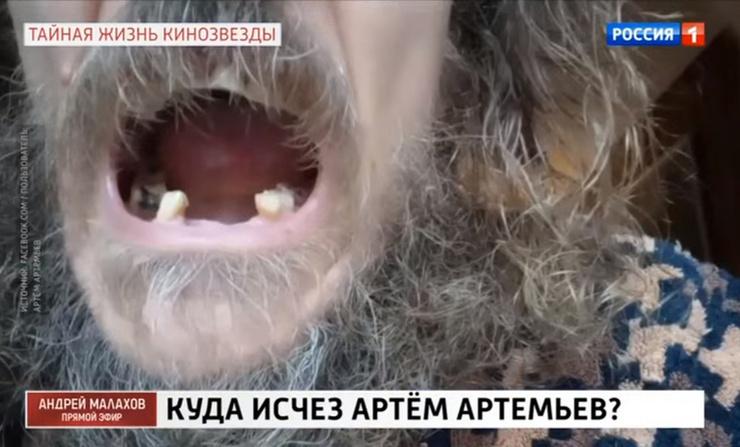 У звезды сериала «Татьянин день» выпали зубы