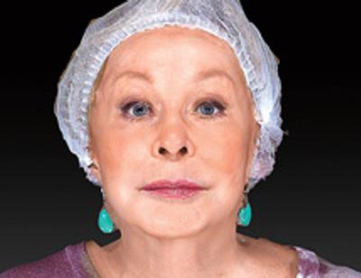 Ангелина Вовк решилась на пластику лица