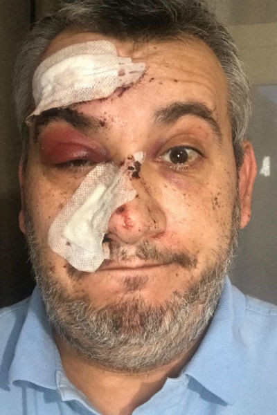 Вадим Глускер повредил лицо