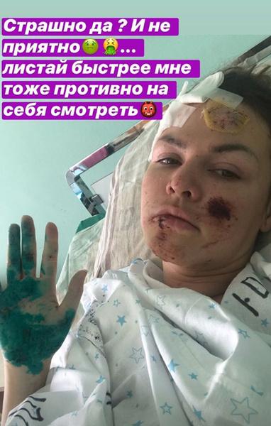 Евгения после аварии
