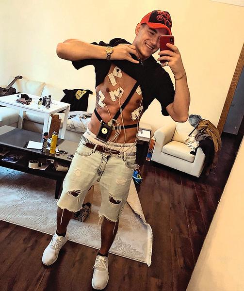 В 2013 годувЛос-Анджелесе певец попал вавтокатастрофу. Помимо полученных травм у Алексея случился травматический инсульт