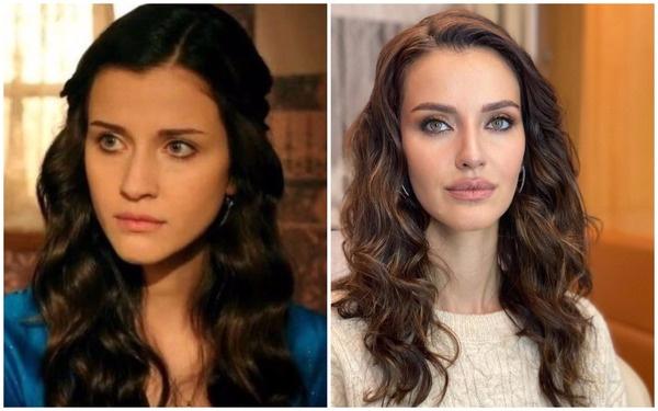 Актриса стала похожа на Анджелину Джоли