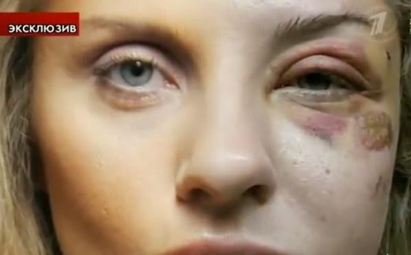 Архарова показала кадры избиения