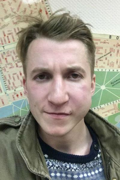 Артист выложил множество снимков, демонстрирующих следы побоев на его лице