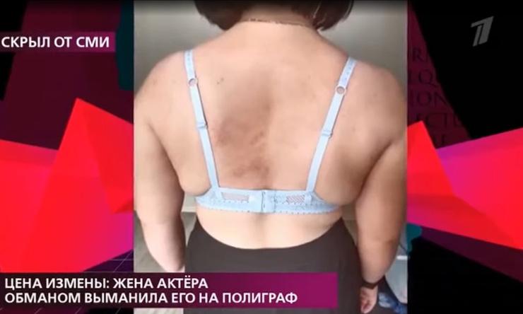 Женщина получила травмы по всему телу