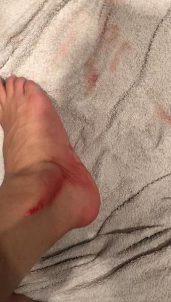Гасанова фиксировала некоторые травмы