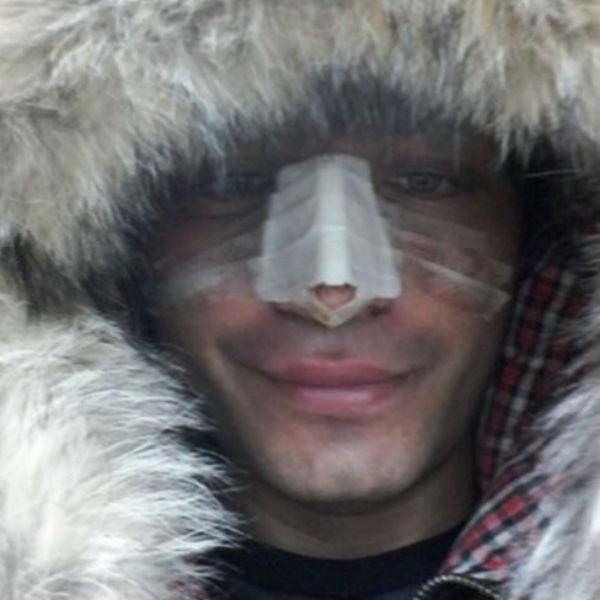 Последствия нападения Рустам был вынужден исправлять на операционном столе