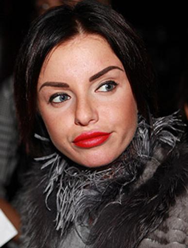 Юлия Волкова в свое время переборщила с улучшайзингом