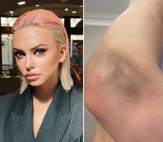 Милана Тюльпанова получила многочисленные травмы после падения с электросамоката – фото
